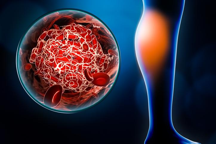 Cartoon image leg swelling blood clot