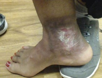 Dr Pappas Varicose veins and Venous Ulcer After 2