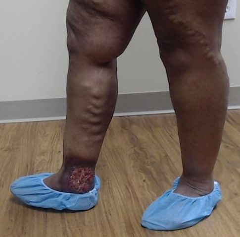Dr Pappas Varicose veins and Venous Ulcer Before 1