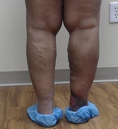 Dr Pappas Varicose veins and Venous Ulcer Before 2