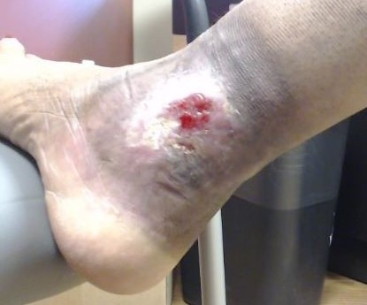Dr Pappas Varicose veins and Venous Ulcer During 2