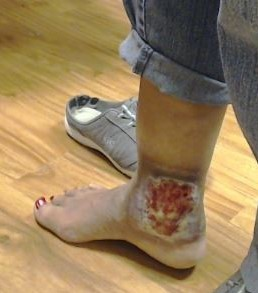 Dr Pappas Varicose veins and Venous Ulcer During