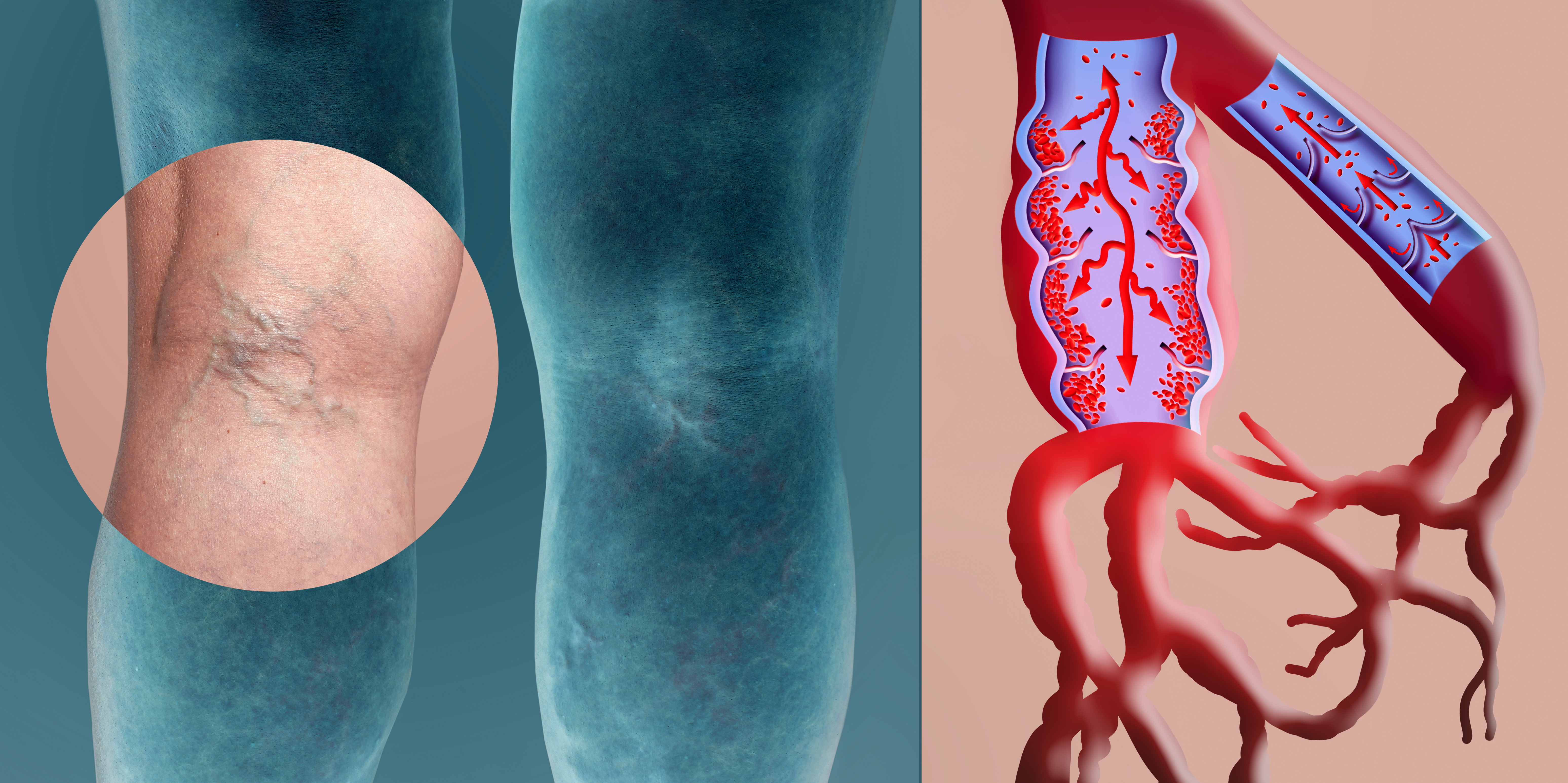 Legs with Varicose Veins and Vein diagrm