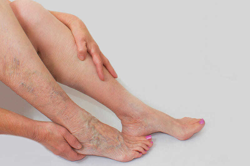 vein free legs treatment