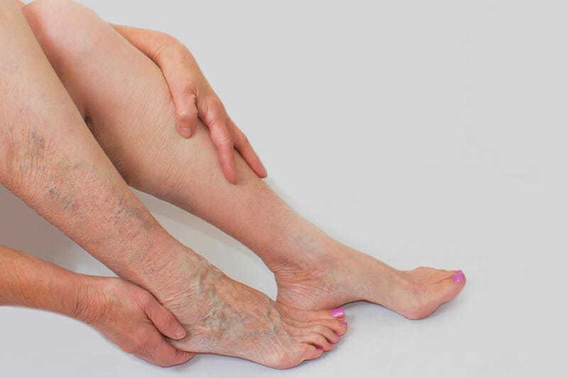 tratamiento de piernas sin varices