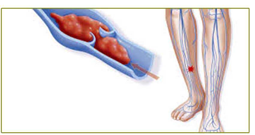 Síndrome postrombótico