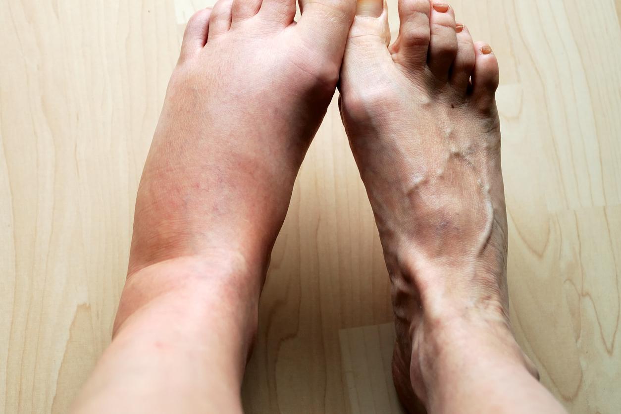 Swollen feet ankle