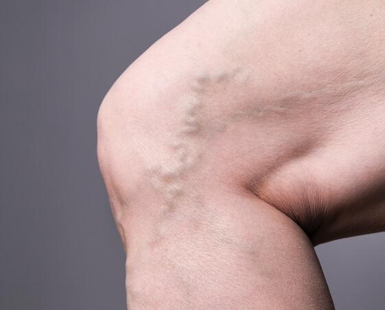 Imagen de venas varicosas