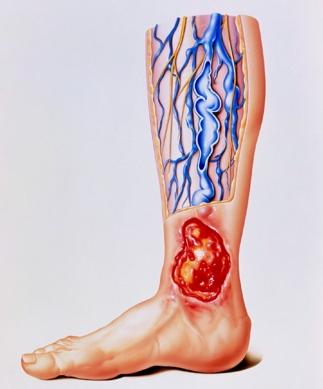 Úlceras por estasis venosa