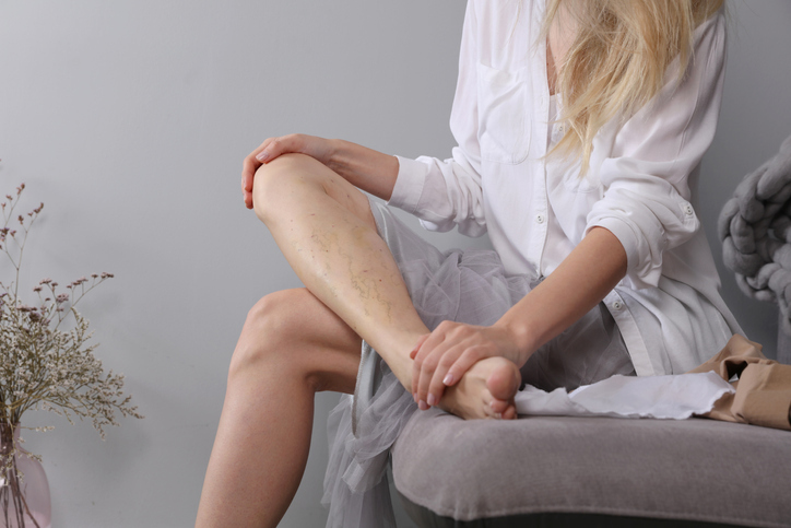 Woman sitting with varicose veins