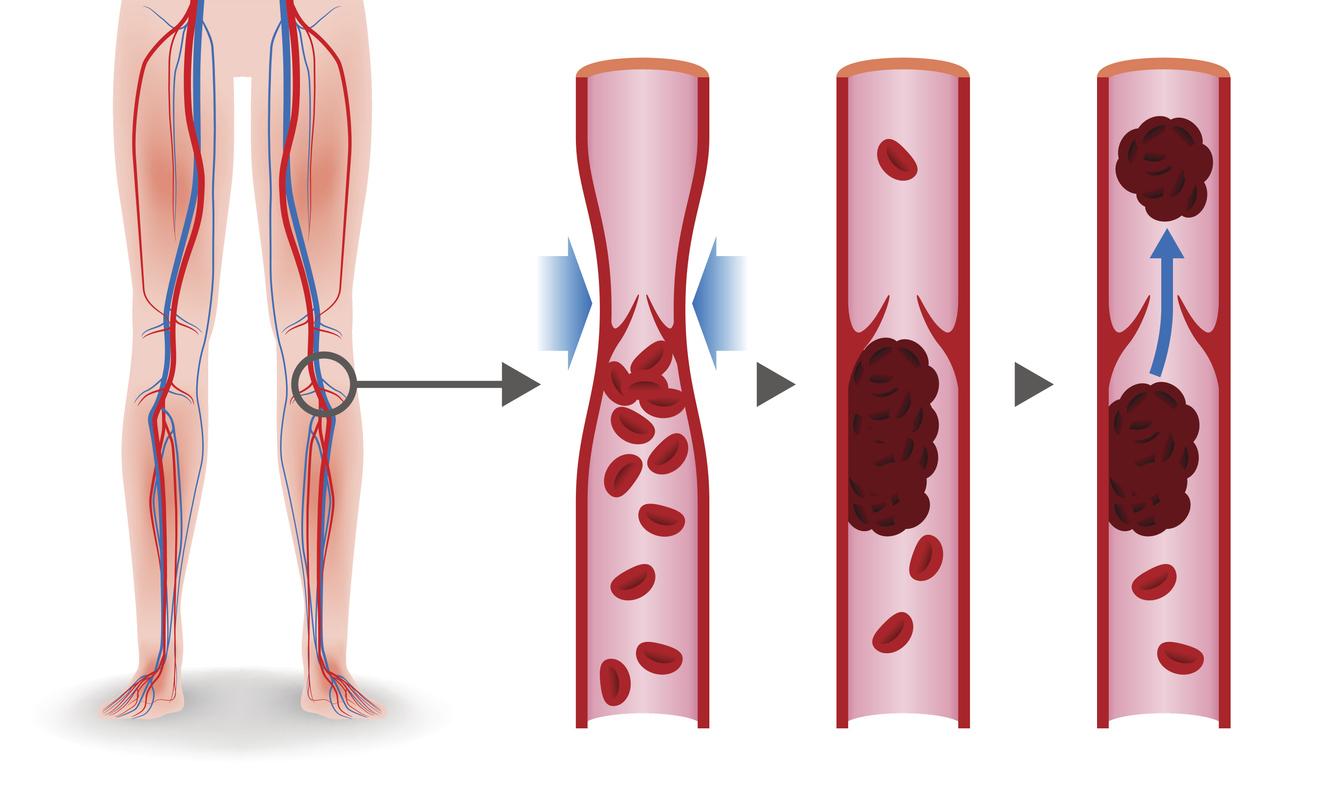 Blood flow legs veins