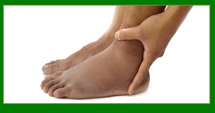 Hinchazón de piernas