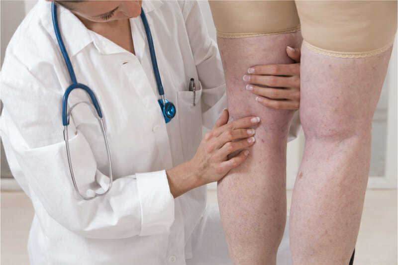 doctor consultation for veins