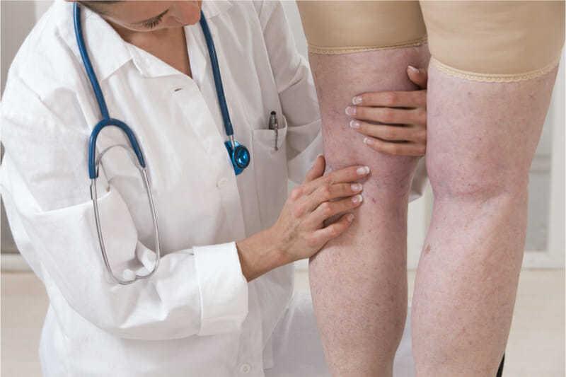 consulta médica para venas