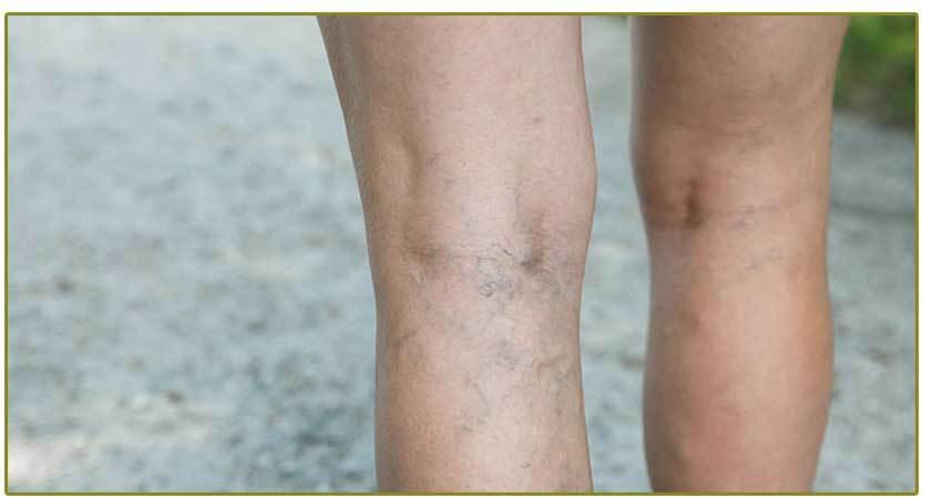 Spider vein legs