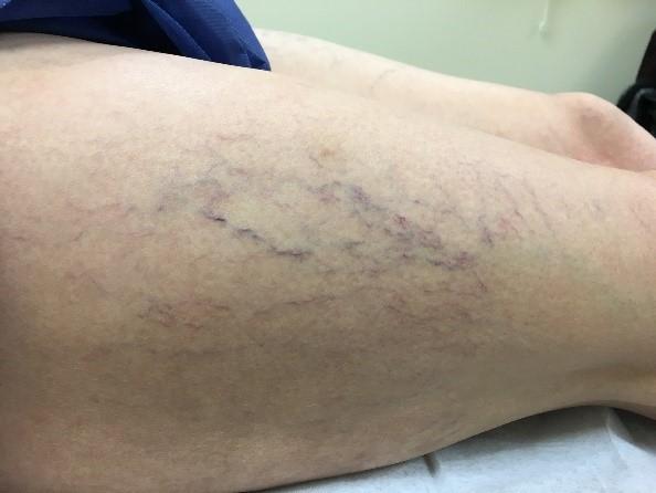 Spider veins before treatment