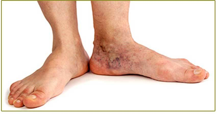 Síntomas de insuficiencia venosa