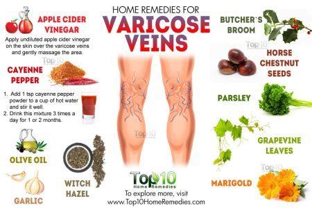 Varicose veins 1 450x300