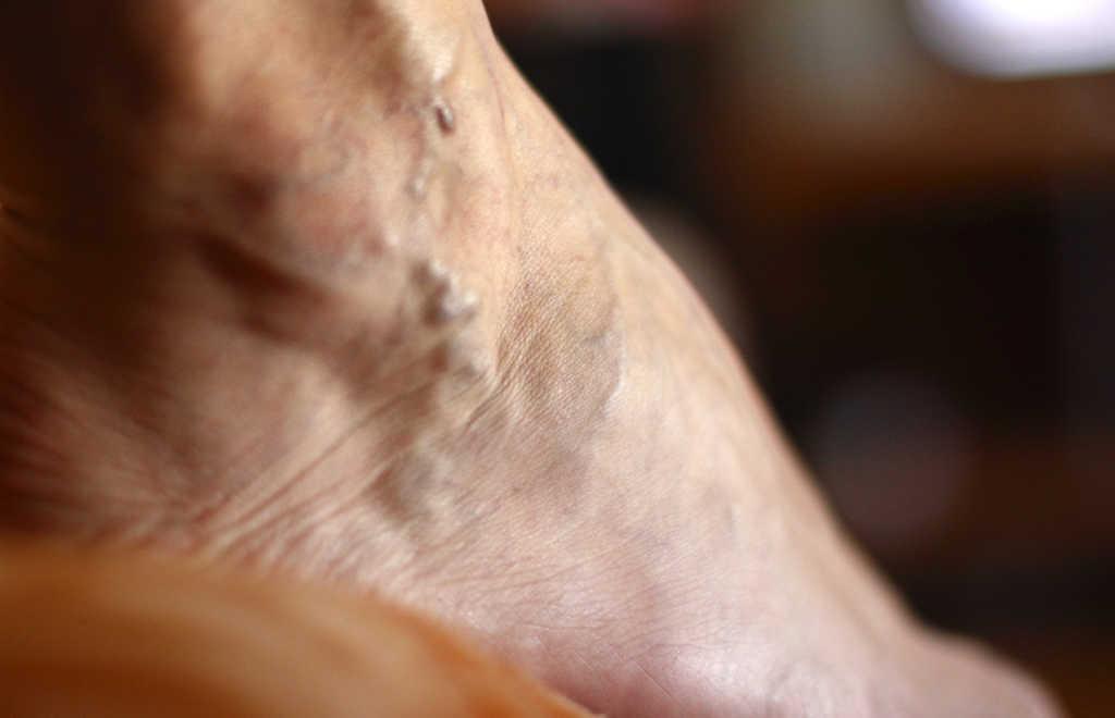 Curación de venas varicosas