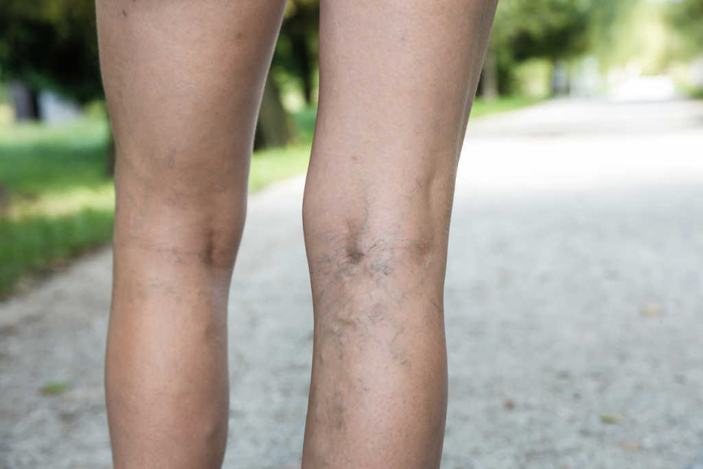 Varicose veins height