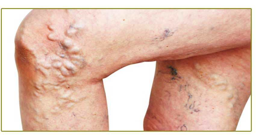 Have Varicose Veins or Leg Pain? Love These Treatments!