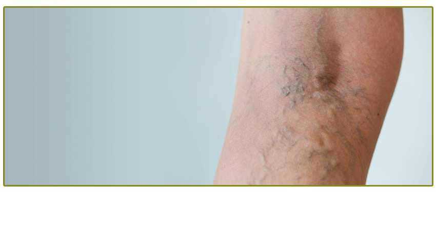 Vein disease 190904 195447
