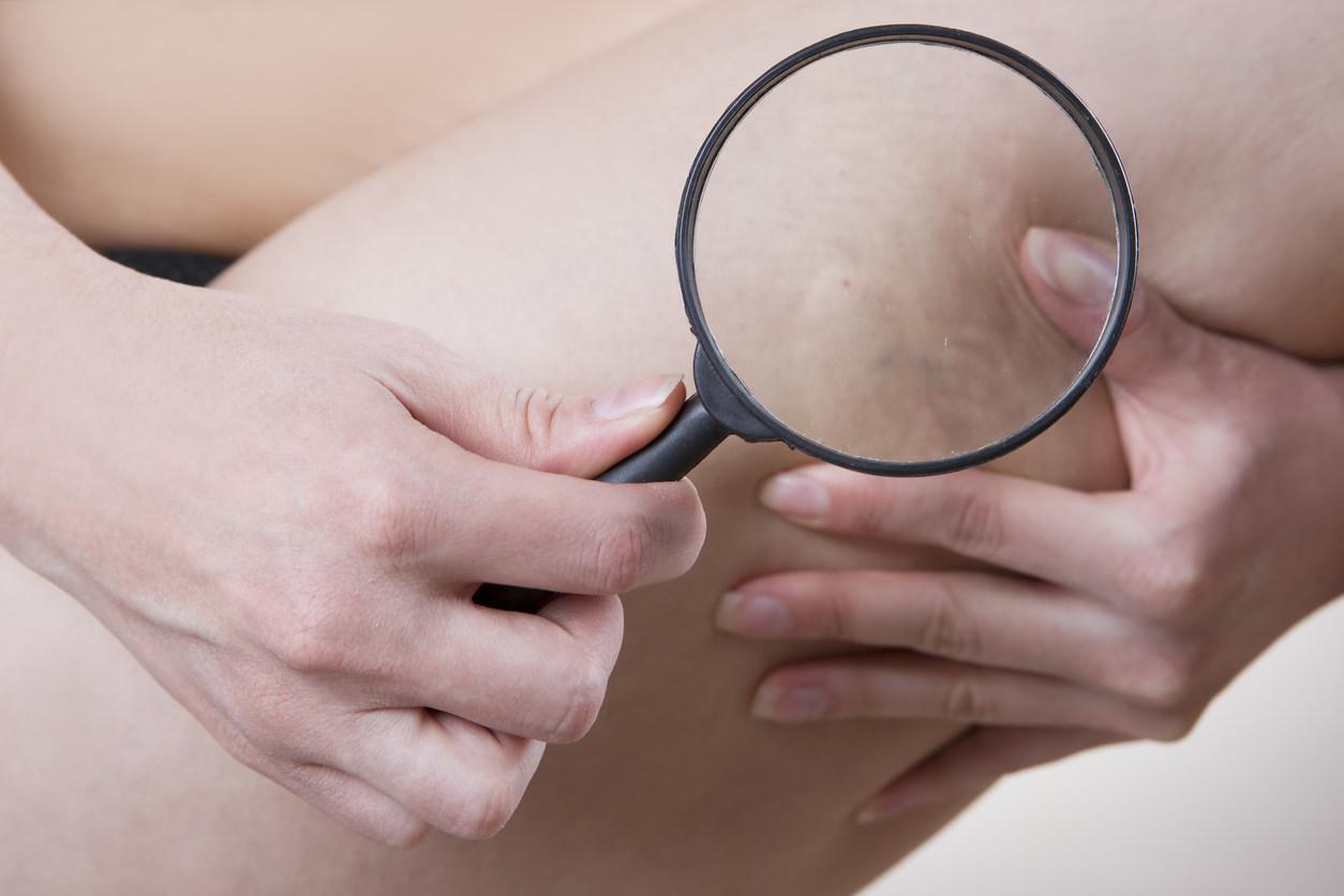 chequeo y tratamiento de la salud de las venas